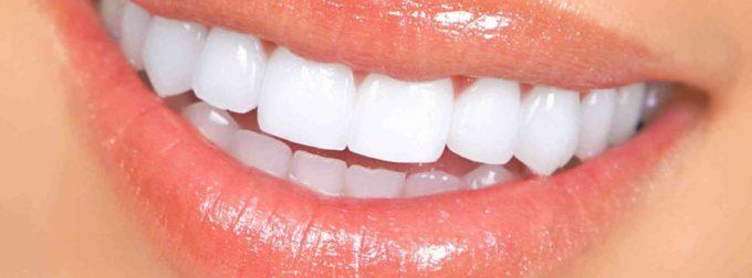 Comment faire blanchir les dents ?